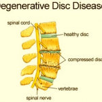 Treating Degenerative Disc Disease