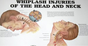 Whiplash injuries of the head and neck